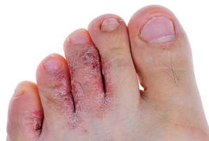 Инфекция на ногах