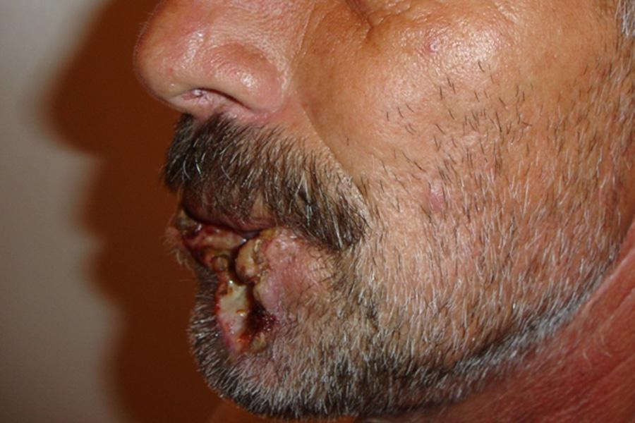 Лечение болезни кишечника у человека