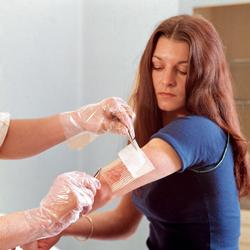 Обработка раны после укуса собаки