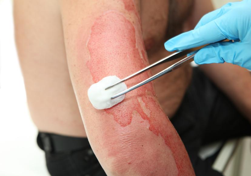 Симптомы отравление кожи
