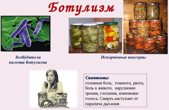 Симптомы ботулизма