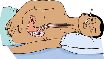 Как промыть желудок в домашних условиях при