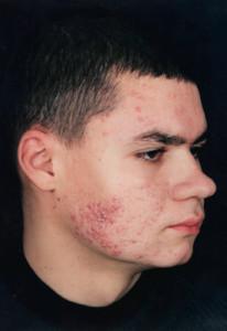 Симптомы стафилококка