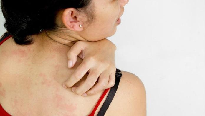 Сыпь после отравления