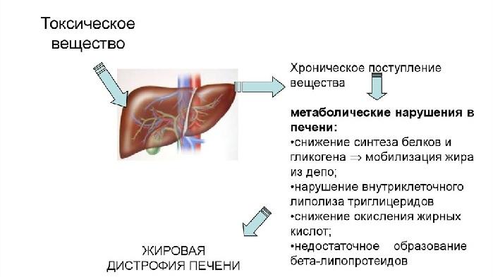 Признаки токсического поражения печени