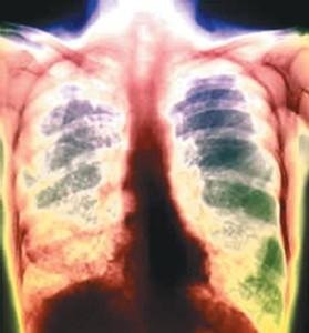 Легкие при туберкулезе