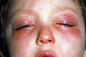 Аллергия на кислородный коктейль