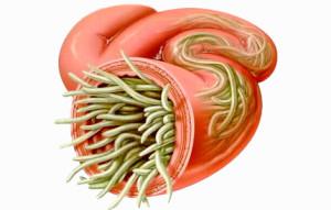 Как убрать паразитов из кишечника