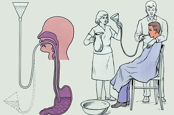 При отравлении промыть желудок