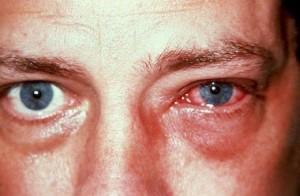 Раздражение глаз при побадании белизны