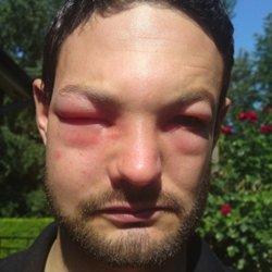 Последствия укуса шершня
