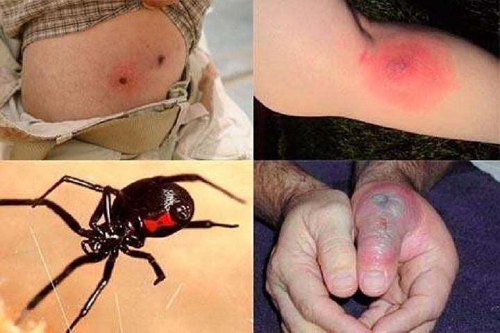 Местные реакции при укусе паука черная вдова