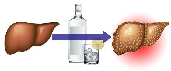 Для восстановления печени после алкоголя
